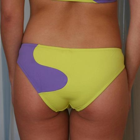 Laura Urbinati Onde Wavy Bandeau Bikini Set - Acid Green/Lilac